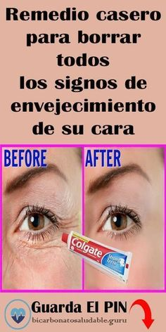 Baking Soda Face My Beauty Beauty Skin Health And Beauty Beauty Hacks Beauty Tips Cabello Hair Natural Beauty Recipes Diy Face Mask Homemade Valentines, Valentine Gifts, Beauty Skin, Hair Beauty, Felt Ball Rug, Peeling, Tips Belleza, Skin Care Tips, Mascara