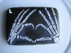 Hand x-rays     By Bickie Blessings