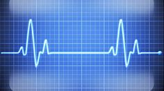 Common Core needs a lot of monitoring to work its scheme. Iowa students will wear heart rate monitors in Phys. Ed. classes to show that they are active. Teachers will use the results in grading for report cards. PHOTO: A pulse trace monitor is shown in this undated file photo.