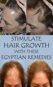 Try these natural remedies to prevent hair loss and to stimulate its growth.:
