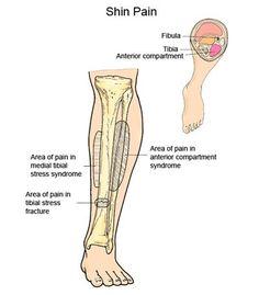 Anatomy of shin splints