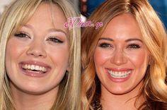 Δείτε-το-χαμόγελο-10-celebrities-Πριν-και-Μετά-την-αισθητική-ιατρική-www.ediva_.gr-1