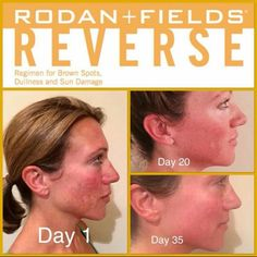 Clean the slate and see a brighter future for your skin. Exposure to the sun and the environment can leave you with less-than-youthful skin. Erase the appearance of premature aging, including brown spots, dullness and discoloration with REVERSE. REVERSE Regimen exfoliates, visibly brightens, reduces the appearance of fine lines and wrinkles and defends against sun exposure for a long-term solution for a radiant complexion. Message Me or Order Online at https://loveandgrace.myrandf.com/