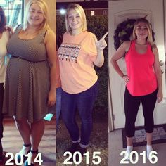 Great gastric sleeve success story! Read before and after weight loss surgery transformation stories from women and men who hit weight loss goals and got THAT BODY with training and meal prep. Find inspiration, motivation, and workout tips | Lost 113lbs,