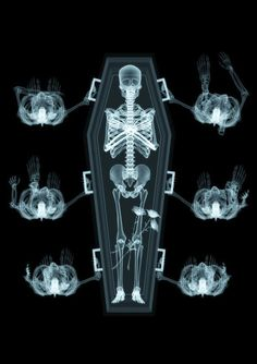 Awesome X-Ray Funeral (x-ray photography)