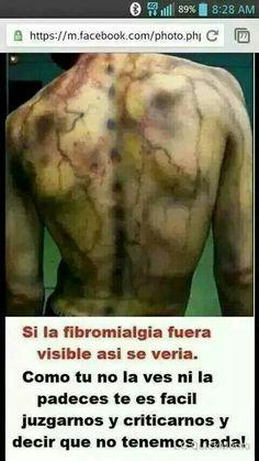 Si la fibromialgia se viera