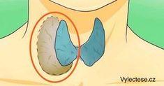 Lékaři to tají: Naučte se vyléčit štítnou žlázu zcela přírodně Thyroid Issues, Thyroid Gland, Thyroid Hormone, Thyroid Health, Hormone Imbalance, Thyroid Cure, Anti Ronco, Troubles Digestifs, Fear Of Flying