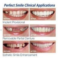 INSTANT SMILE VENEER - Upper & Lower Included