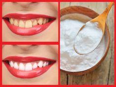 Cómo blanquear los dientes con bicarbonato de sodio — Mundo Salud Skin Care, Health, Tips, Nirvana, Nail, Lifestyle, Closet, Natural Teeth Whitening, Dental Health