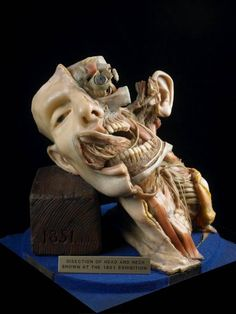 Wax model of the dissection of the head and neck. Joseph Towne. 1851. Gordon Museum. King's College, London.