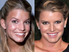 With Cosmetic Dentistry Can Get A Smile Makeover - Star Styles Teeth Whitening Procedure, Teeth Whitening Remedies, Teeth Whitening System, Celebrity Teeth, Celebrity Smiles, Teeth Makeover, Smile Makeover, Veneers Teeth, Dental Veneers