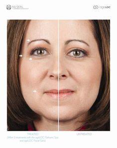 Aging skin collagen, anti-aging skin #skincare #beauty #skin #healthyskin