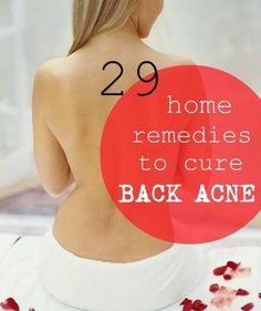 Don't worry if you're suffering from the back acne scars, follow these home remedies to completely get rid of the scars