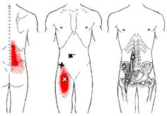 Iliopsoas | The Trigger Point & Referred Pain Guide