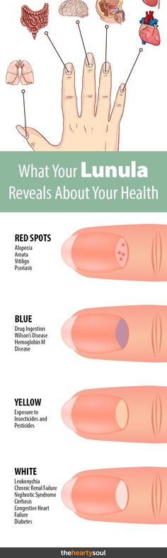 Few People Know The Half Moon Shape On Your Nail Could Save Life What You Need To Health Signshealth Charthealth