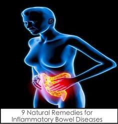 9 Natural Remedies for Inflammatory Bowel Diseases