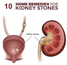 Top 10 Home Remedies For Kidney Stones