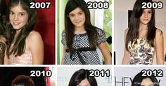 The Complete Transformation of Kylie Jenner