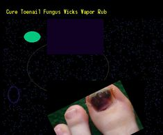 Cure toenail fungus vicks vapor rub - Nail Fungus Remedy. You have nothing to lose! Visit Site Now