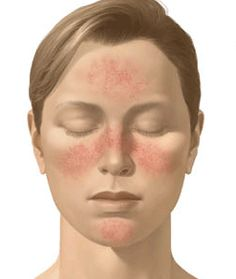 Managing Rosacea - SV Naturally