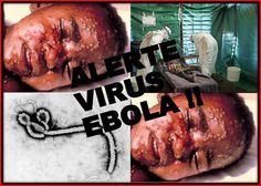 Sebastiano Nino Fezza: News virus Ebola 2014 oggi 19 agosto: l'epidemia fa paura, 1300 morti accertati...