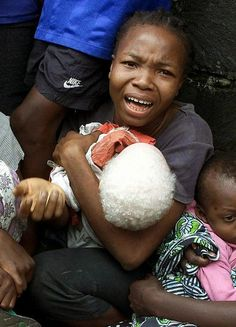 Tanzanian officials claim that witch doctors are promoting the sale of albino skin, bones and hair as ingredients in spells to create prosperity. In the past year, 19 albinos including children have been killed or mutilated. Police are creating lists of albinos throughout their nation in an effort to better protect them including escorts for albino children to get to and from school. I absorb a lot of news, but this story is almost unimaginably horrific.