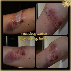 Think Again...  Melanoma Awareness