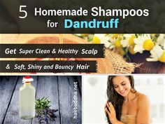 5 Homemade Anti-Dandruff Shampoos: Get Clean & Clear Scalp - hair buddha Dandruff Remedy, Anti Dandruff Shampoo, Diy Shampoo, Homemade Shampoo, Hair Remedies, Homemade Hair, Homemade Beauty, Diy Beauty, Top