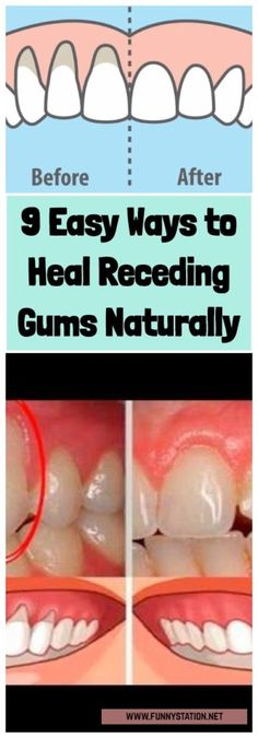 9 Easy Ways to Heal Receding Gums Naturally Healthy Tips, Healthy Skin, Receding Gums, Mouth Watering Food, Cannabis Growing, Belly Fat Workout, Alternative Health, Natural Home Remedies, Improve Yourself
