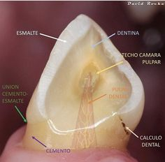 Dental Assistant Study, Medicine Notes, Dental Anatomy, Teeth Implants, Veterinary Medicine, Dental Care, Dentistry, Aesthetic Art, Prado