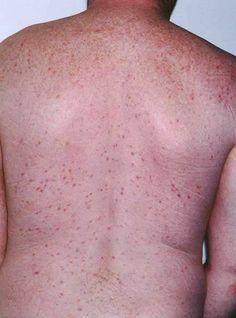 Folliculitis from bikini shaving