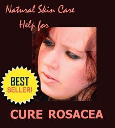 Rosacea - New Information, Help and Hope for Adult Acne (Natural Skin Care) by Julia Busch has decreased from $4.99 to $0.00 at BookSliced.