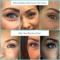 These amazing results are from applying Rodan + Fields Redefine Multi-Function Eye Cream.  Just 2 months.  This joy in a jar last 90 days or more using it twice daily.  I love it!!!