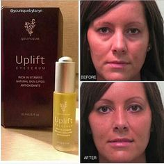 Younique uplift eye serum xx amazing before and afters #Younique #eyes