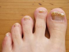 Грибок ногтей — распространенная проблема, и она очень не приятна. Когда наступает теплая пора года, и мы меняем ботинки на сандалии, эту проблему трудно игнорировать. Поэтому следует уделять...