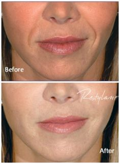 Restylane is an FDA approved filler containing hyaluronic acid which like collagen is a natural component of the skin. It is a non-animal biodegradable product that is produced under laboratory conditions. The benefits from Restylane® generally are long lasting, up to 18 months when a follow up treatment is performed at 4.5 or 9 months. More than one million treatments have been performed worldwide. http://derm90210.com/Restylane--Perlane