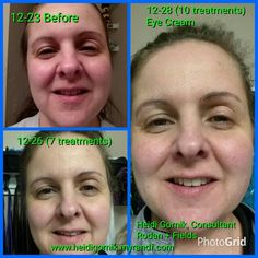 www.heidigornik.myrandf.com Rodan+Fields Eye Cream on Consultant, Heidi Gornik. Check out the difference in the eyelids!  Created by Photo Grid.  Android  https://play.google.com/store/apps/details?id=com.roidapp.photogrid  iPhone  https://itunes.apple.com/us/app/photo-grid-collage-maker/id543577420?mt=8