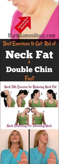 5 Extremely Easy Exercises To Get Rid Of Double Chin And Neck Fat Fast in a Week to try.