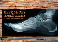 Top-Rated Footwear for Plantar Fasciitis Relief and Put a Stop to Foot Pain. Best Plantar Fasciitis Sneakers for Running, Walking, Working and More.