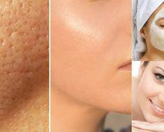 Aprenda esta receita para fechar os poros e ter uma pele lisinha! - DICAS CASEIRAS