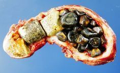 Čínsky doktor prezradil tajomstvo, ako sa jednoducho zbaviť žlčníkových kameňov za 7 dní