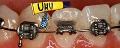 ¿Es posible pegar los brackets en casa? No utilice adhesivos para volver a pegar un brackets que se ha desprendido, solicite una cita con su ortodoncista.