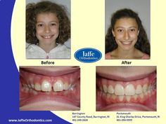 Delaney Orthodontics, Portsmouth, King Charles, Photos, Pictures, Cake Smash Pictures