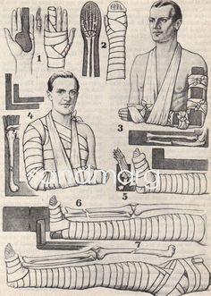 Vintage 1930s Medical Mummy Man |