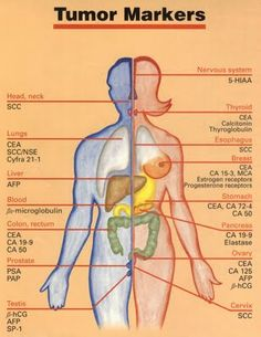 tumor markers - Google Search