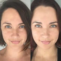 The Chemical Peel You Can Do on Your Lunch Break I'll admit, eight weeks ago the idea of a chemical peel was terrifying. And as an Indigenous Australian/Greek hybrid who loves her freckles the thought of Glycolic Peel, Beauty Hacks Skincare, Beauty Tips, Beauty Products, Face Peel, Chemical Peel, Facial Care, Teeth Whitening, Beauty