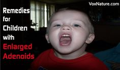 Adenoids work for the lymphatic system, and are vulnerable to infection and inflammation. In some cases, children are born with enlarged adenoids.