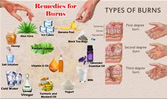 Burns first aid at home. DIY Home Remedies for Burns. Second-degree burn treatment. Homemade medicines, ointments, creams to get rid of first-degree burns.