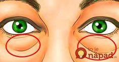 Kruhy pod očami sú jedným z najviditeľnejších vonkajších znakov únavy a nedostatku spánku. Nie vždy sa ich podarí prekryť make-upom a na našej tvári doslova svietia. Naučte sa, ako ich odstrániť úplne jednoducho a v rekordnom čase.