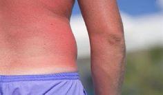 ΥΓΕΙΑΣ ΔΡΟΜΟΙ: Ηλιακό έγκαυμα: Προσοχή στους 5 παράγοντες που μπο...